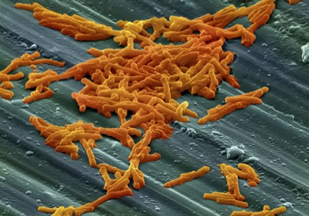 cluster of Clostridium difficile bacteria on a surface
